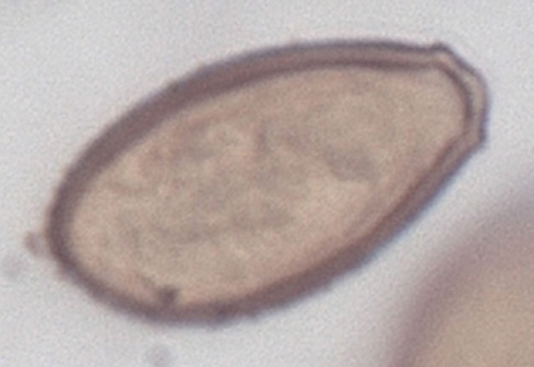 чесночные клизмы от паразитов